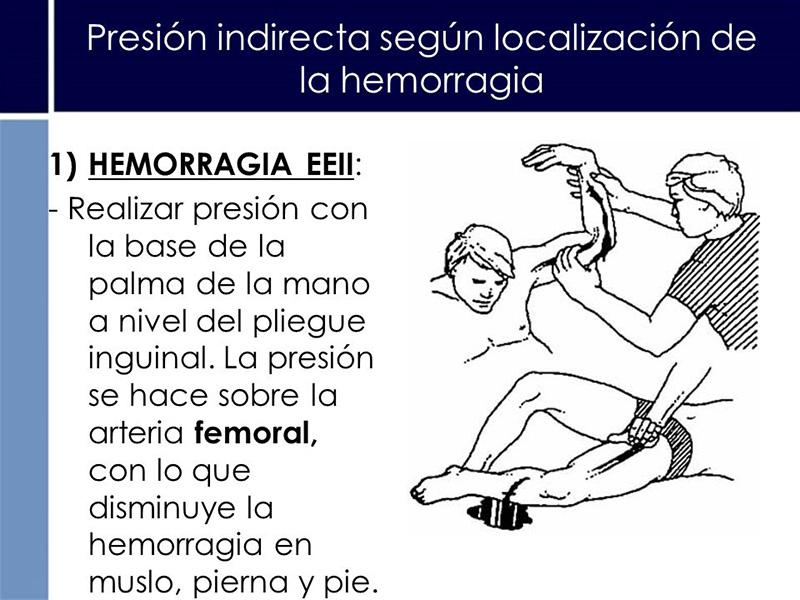 Hemorragias-3
